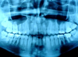 Dental x-ray (courtesy of forensicodontologys.webs.com/)