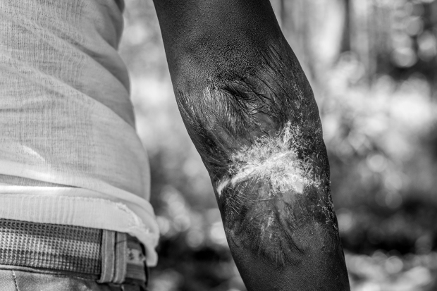 The everlasting scars from torture. Photo: Natalia Jidovanu